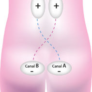 imagesElectrostimulation-prostate-13.jpg